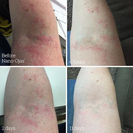 EczemaArm.png