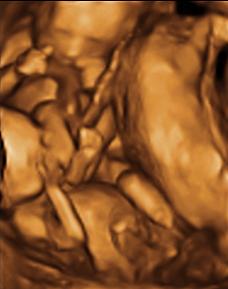 Fredericksburg Ultrasound Studio - Peek A Boo