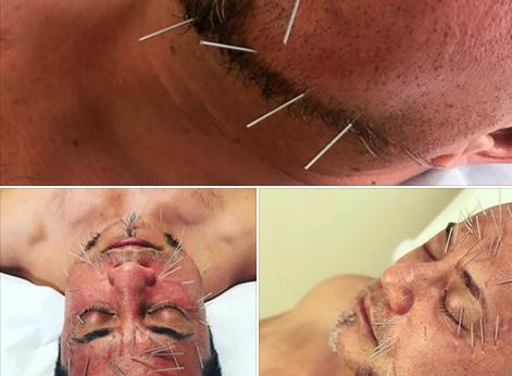 Member Testimonial: Facial Rejuvenation