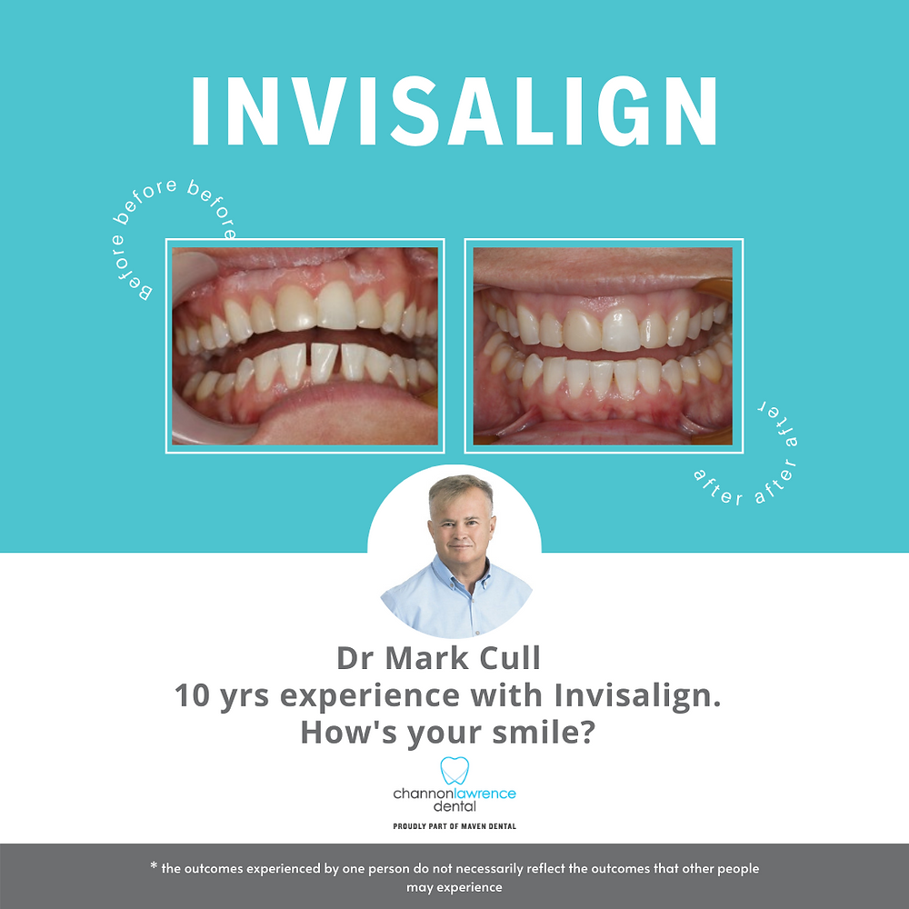 Before and after images of crooked teeth that were straightened using Invisalign clear retainers, invisible retainers.