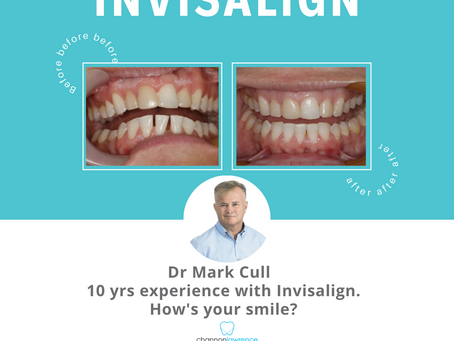Invisalign® Cost | 5 Things You Need To Know About Invisalign