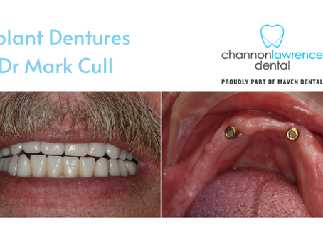 Implant Dentures - How Long Do They Last and What Do They Cost?