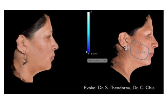 sculpt facial features with inmode evoke