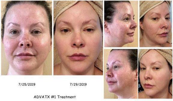Anti-aging aesthetic treatments