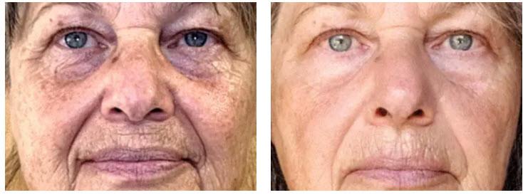 ADVATx anti-aging