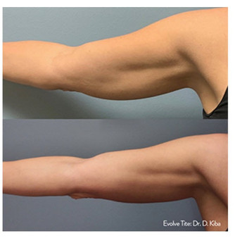 melt arm fat and batwings
