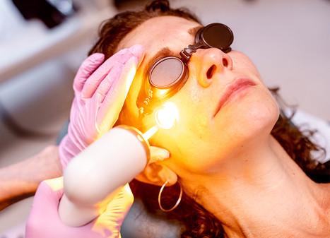 laser treatment for pigmentation
