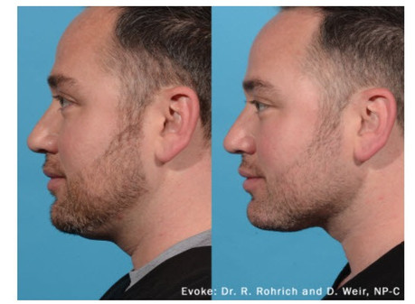Chin and jaw contouring
