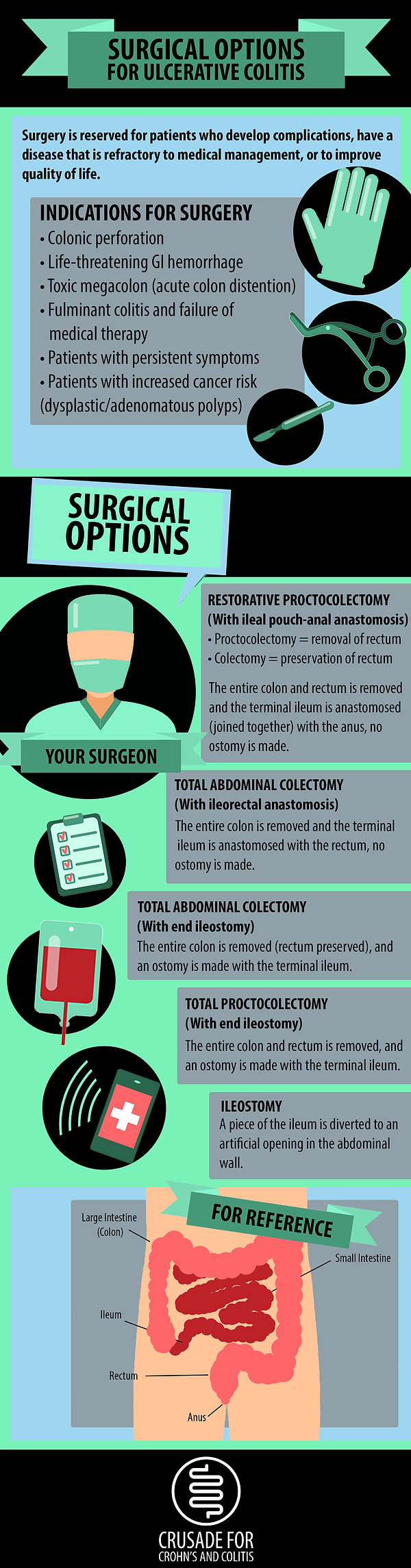 Surgical Options for UC Infographic