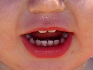 Salud dental infantil: padres y la importancia de la información