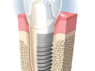 ¿Dudas sobre implantes dentales?