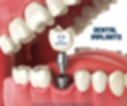 dental-implants-salem-ma.png