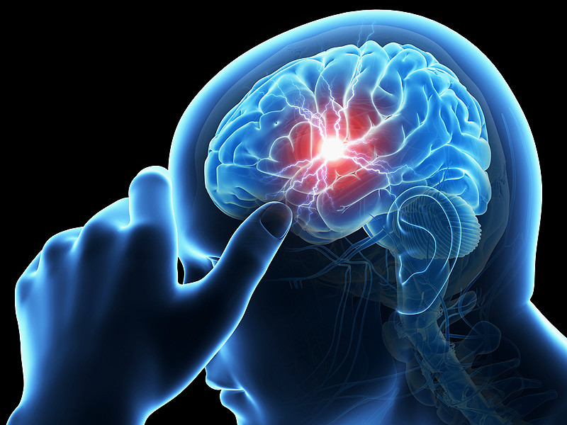 How to Lower Your Risk of Having a Stroke