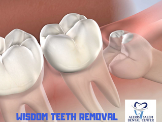 Wisdom Teeth Removal: What to Expect Before, During, and After