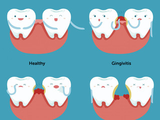 Periodontal Disease and Systemic Disease