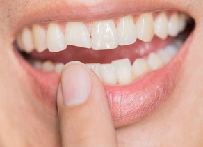 Cracked Tooth: 5 Methods for Treating a Broken Tooth
