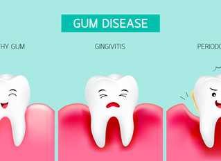 Gum or Periodontal Disease Causes, Symptoms, Diagnosis