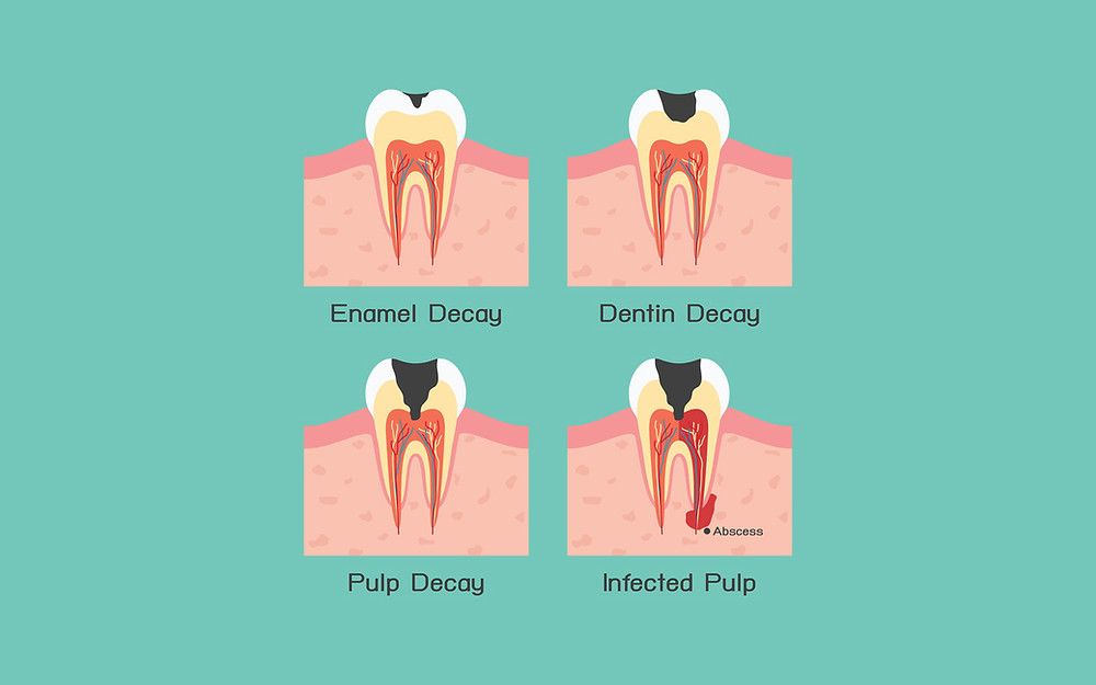 Tooth Decays Types