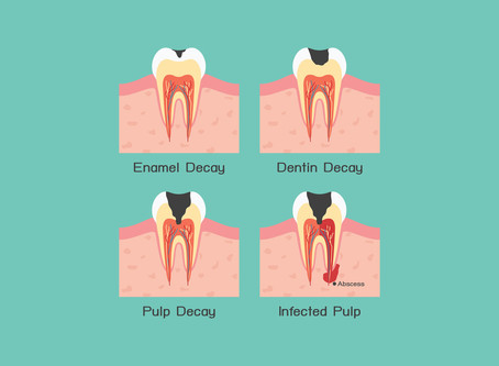 Fact Sheet: About Tooth Decay