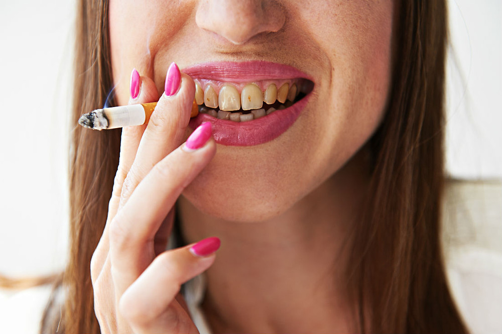 yellow teeth as a result of woman smoking
