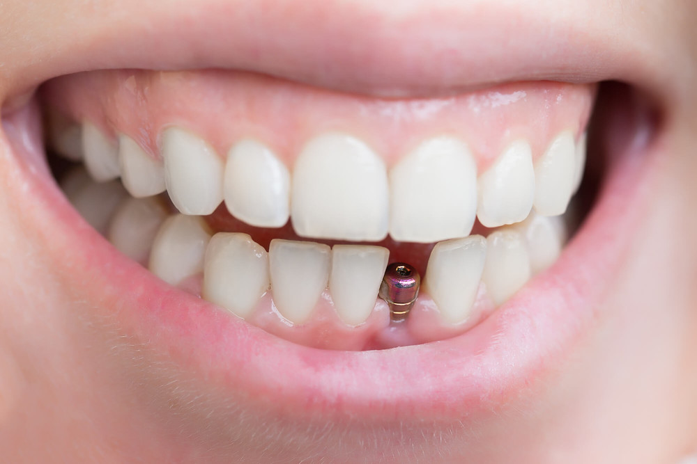 missing front tooth replaced by dental implant