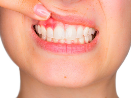 Gum Disease: Causes, Risk Factors, and Symptoms