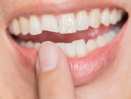 How to Repair Front Chipped Tooth