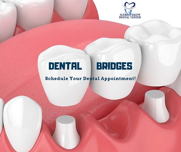 dental-bridges-salem-ma.png