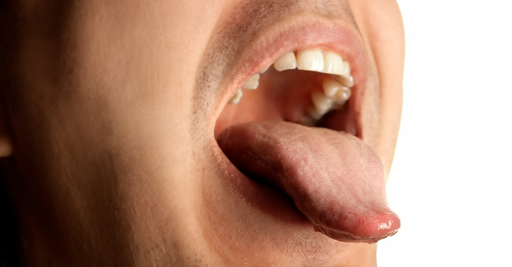 man's mouth oral cancer screening