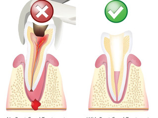 Saving Your Natural Tooth vs. Extraction