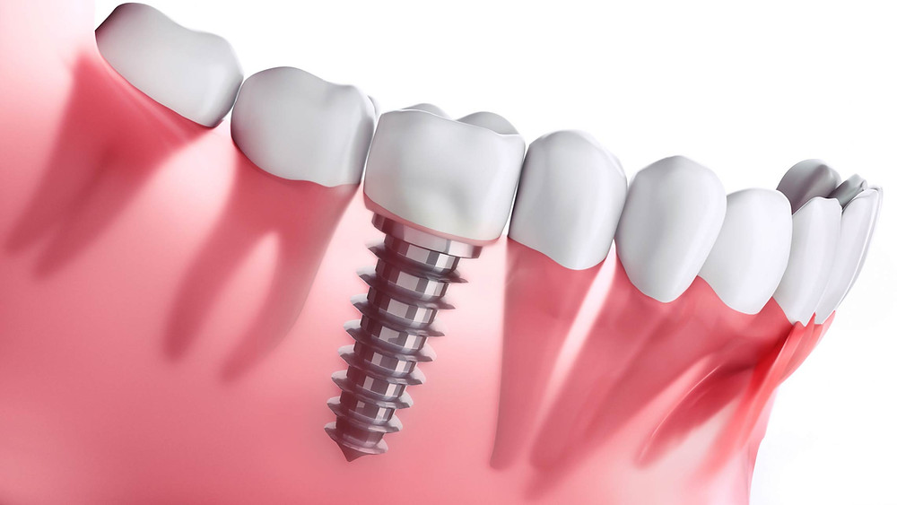 Missing Tooth replaced by dental implant