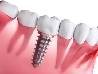 Why Is It Important to Treat the Missing Tooth with a Dental Implant?