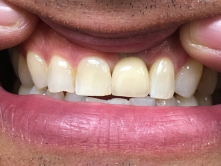 Dental Case: Implants by Dr.Ofir and Dr.Singh, Cambridge MA