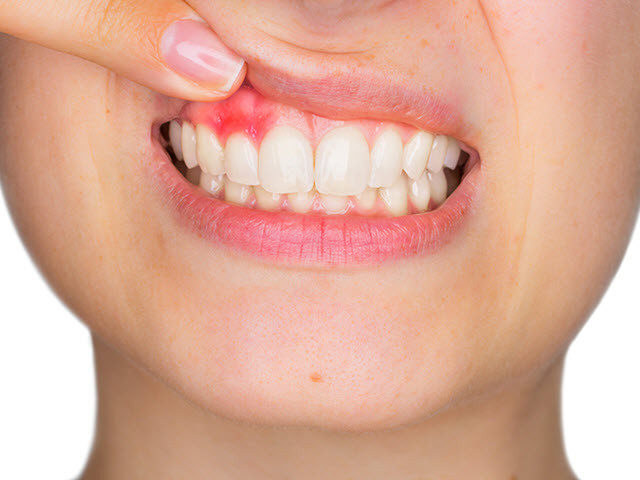 smiling girl with Bleeding Gums