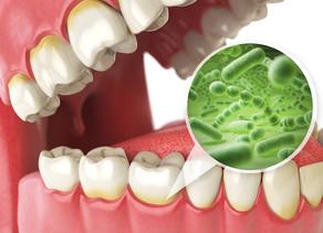 Dental Cavities   Dentist in Salem, MA