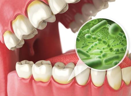 Dental Cavities | Dentist in Salem, MA