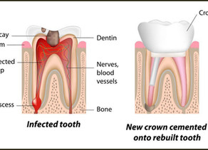 Do You Need a Crown After Root Canal Treatment?