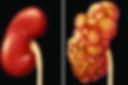 Kidney G.png