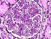 Kidney Disease P.png