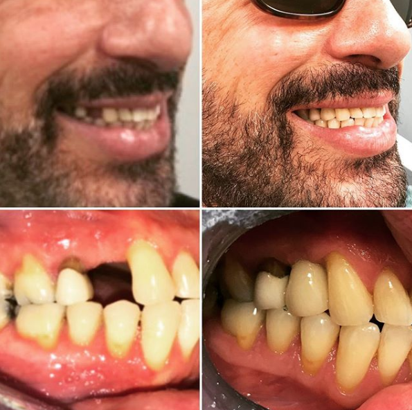 Vancouver Dental Implants