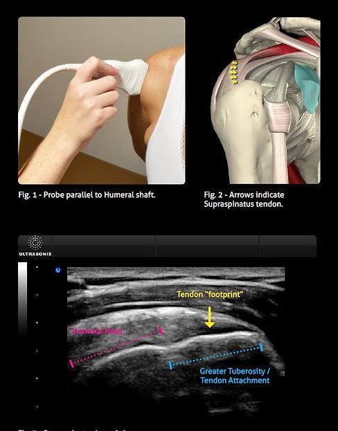 ultrasound1.JPG