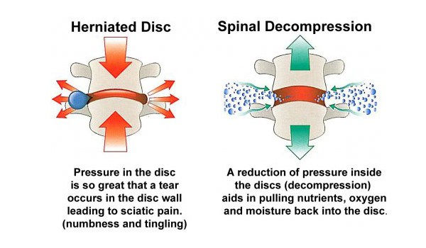 how spinal decopression works
