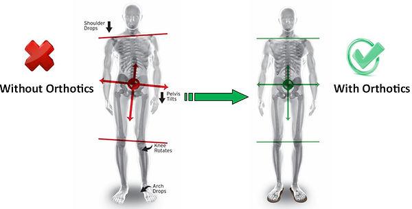 orthotic correction