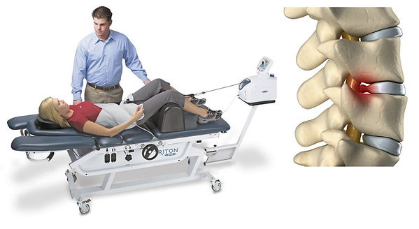 Spinal-Decompression-Therapy.jpg