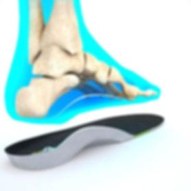custom insoles orthotics