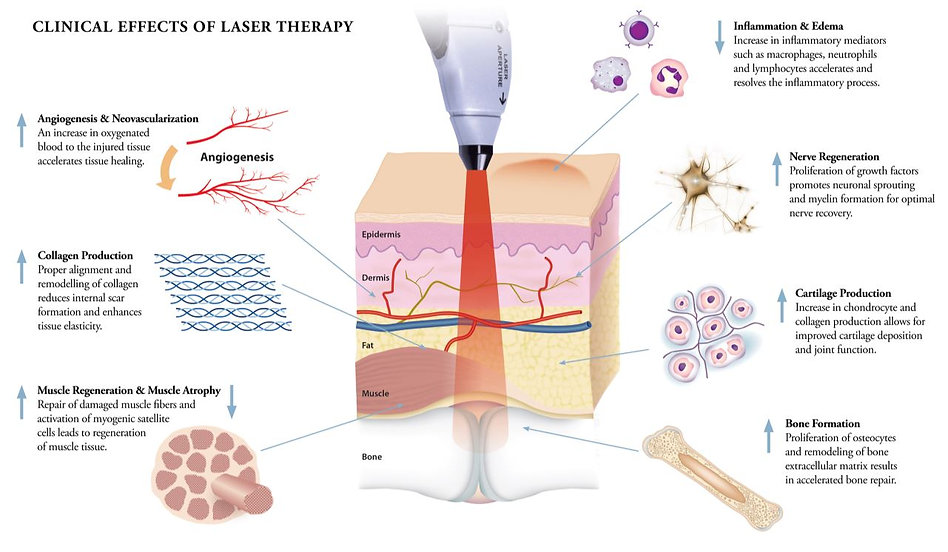 Laser therapy Treatment how does it work