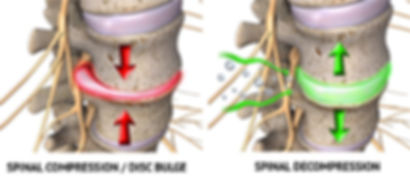 spinal decompression results
