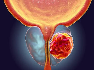 cancerdeprostata.jpg