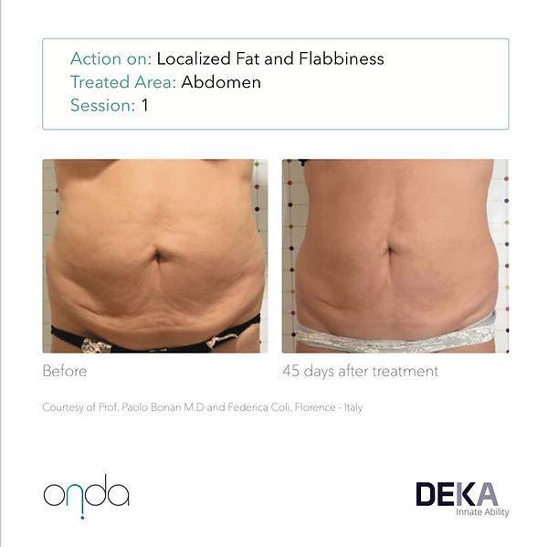 DEKA-ONDA-before-after-patient1-1tx-stom