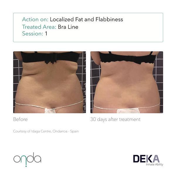 DEKA-ONDA-before-after-patient3-1tx-back